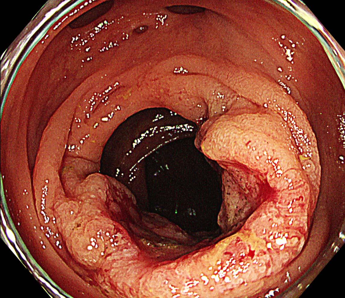 大腸がん1