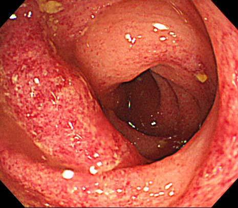 虚血性大腸炎1