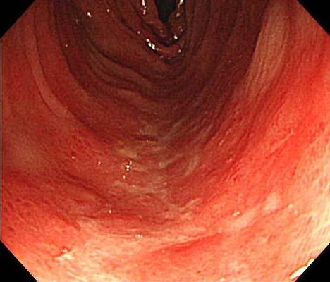 虚血性大腸炎2