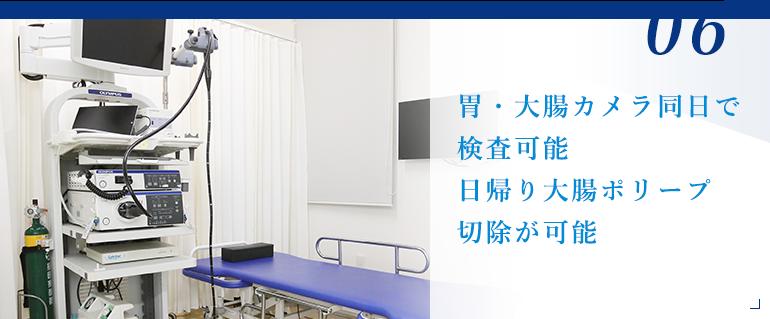 胃・大腸カメラ同日で検査可能 日帰り大腸ポリープ切除が可能